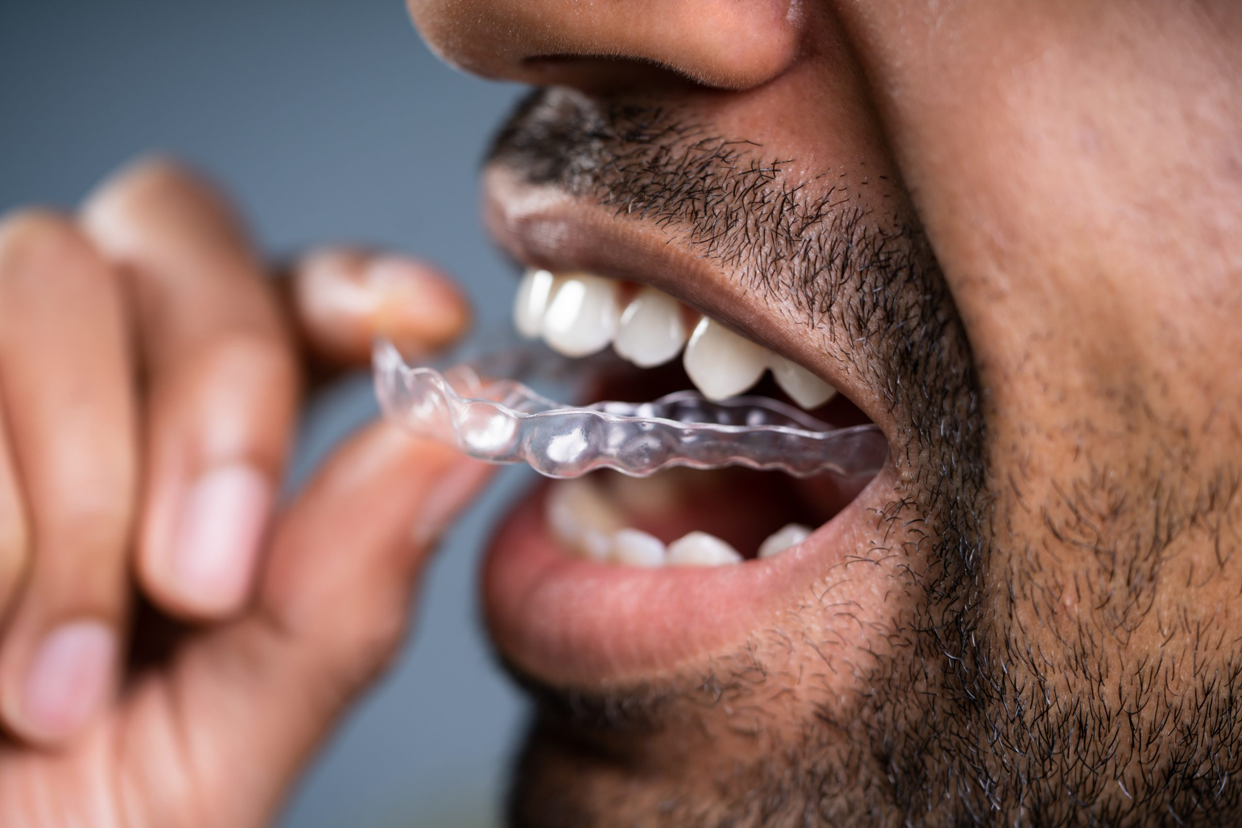 Wearing a Retainer After Braces - Ghosh Orthodontics - The ...