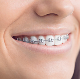 Someone with metal braces smiling